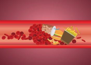 Исследование: уровень холестерина упал в Европе и вырос в Азии