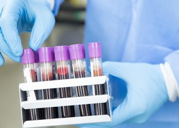 Обнаружен новый способ лечения спонтанных кровотечений у больных