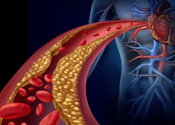 Препараты для снижения уровня холестерина могут замедлить развитие метастазов рака молочной железы в головном мозге