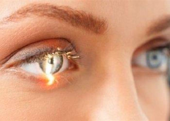Що таке глаукома? Причини розвитку та рекомендації