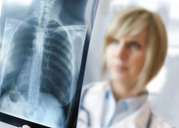 Ученые открыли механизм самоуничтожения возбудителя туберкулеза