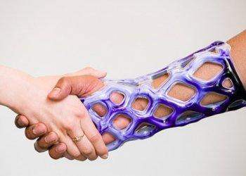 На рынок медицинских материалов вышла революционная замена стандартному гипсу