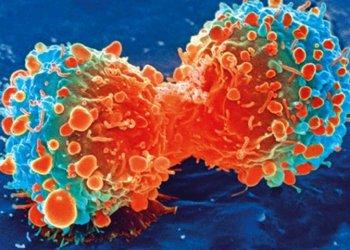Завершено одно из самых масштабных онкологических исследований  в мире