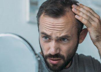 Лечение алопеции  может закончиться суицидом, предупреждают ученые