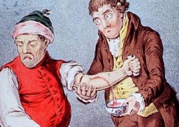 История кровопускания: один из самых древних методов лечения