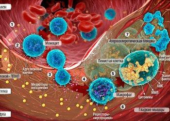 Исследователи прояснили природу развития атеросклероза